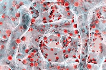 Comment casser les biofilms bactériens?